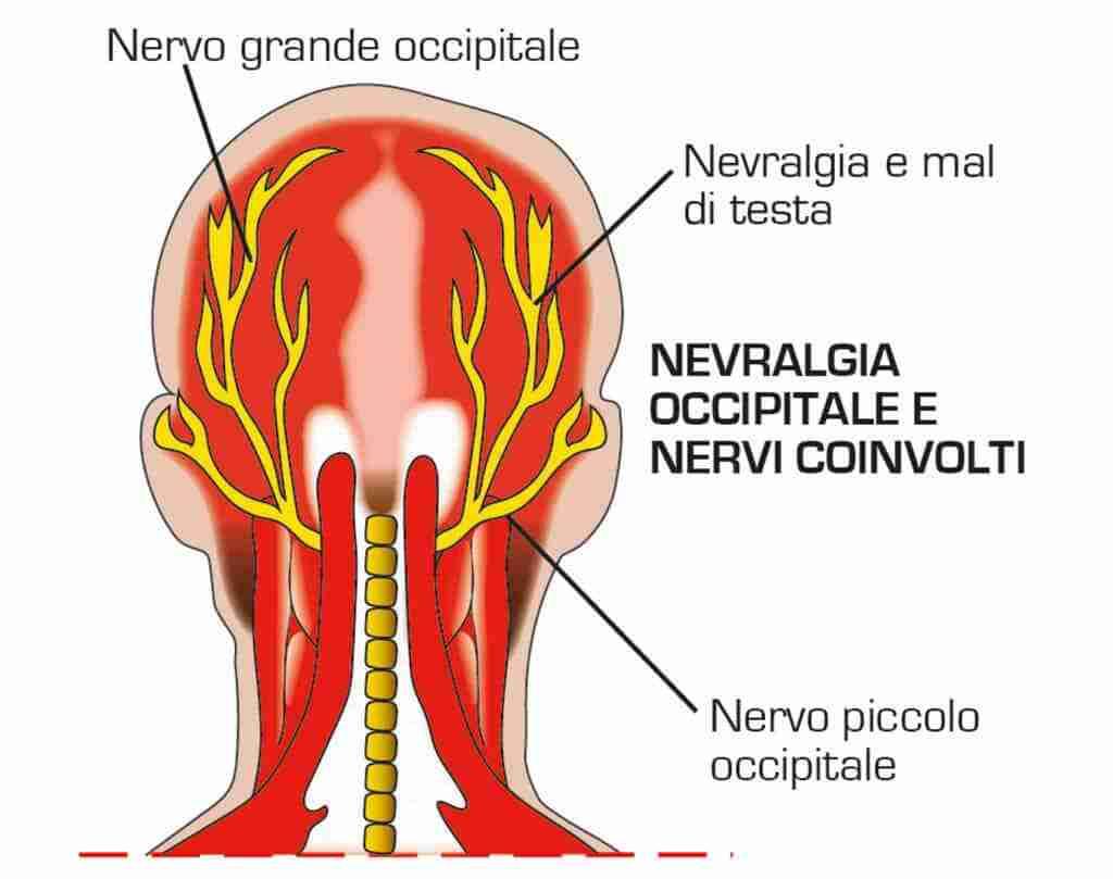 nevralgia-occipitale