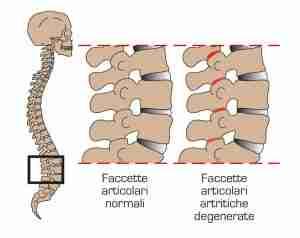 sindrome-faccette-articolari