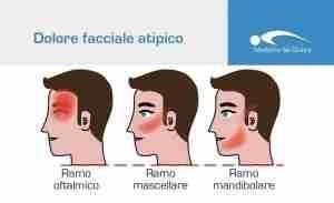 dolore-facciale-atipico